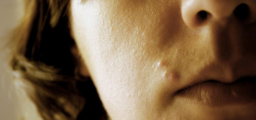 Top 6 Home Remedies For Zits