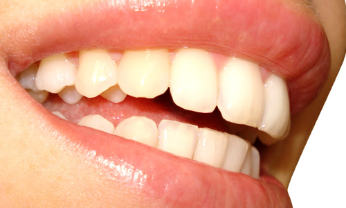 9 Facts About Teeth Whitening You Didn't Know