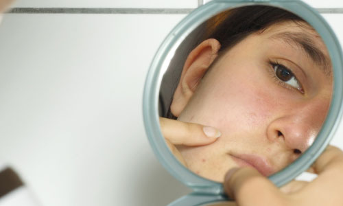 5 Medicines for Severe Acne Treatment