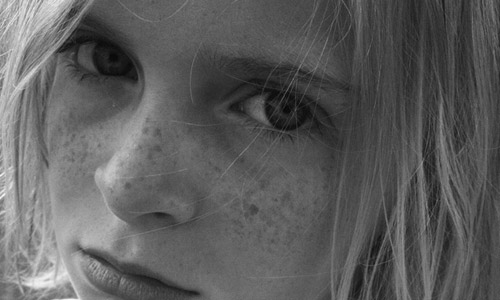 6 Easiest ways to Get Rid of Freckles