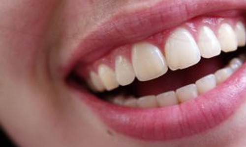 Instant Teeth Whitening Gimmicks