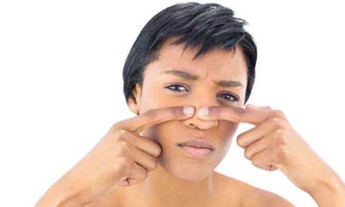 5 Causes Of Acne Vulgaris