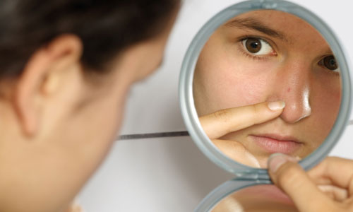 8 Tips to Get Rid of Blemishes