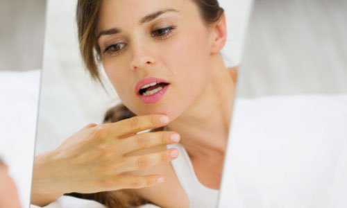 6 Top Herbal Remedies for Acne