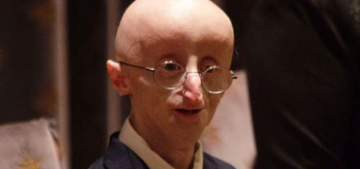 things-to-know-about-Sam-Berns-who-had-Progeria