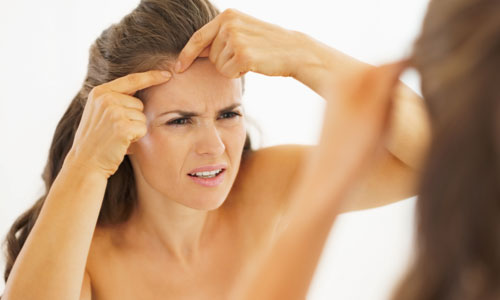 Ways to Avoid Getting Affected by Acne