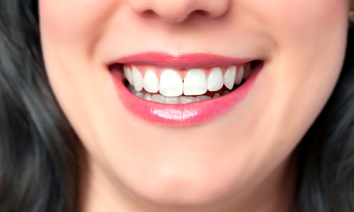 Home Remedies to Make Teeth Whiter