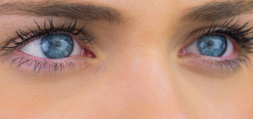 reasons-for-dark-circles-under-eyes